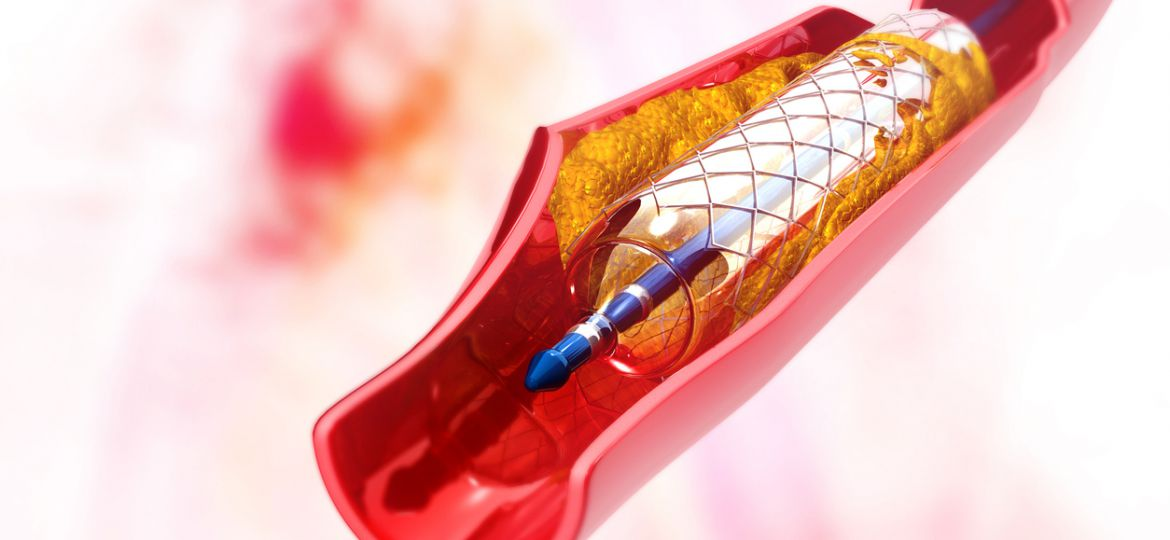 "Stent angioplasty. 3d illustration""n""n"