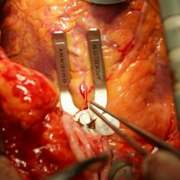 A-combined-use-of-a-heart-stabilization-device-and-an-intra-coronary-shunt-device
